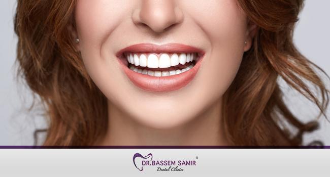 تجميل الاسنان بدون تقويم