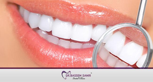 تبييض الاسنان بالليزر بالتفصيل