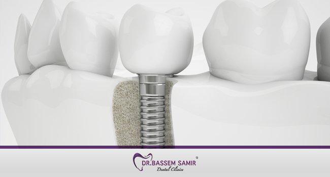 اسعار زراعة الاسنان في مصر