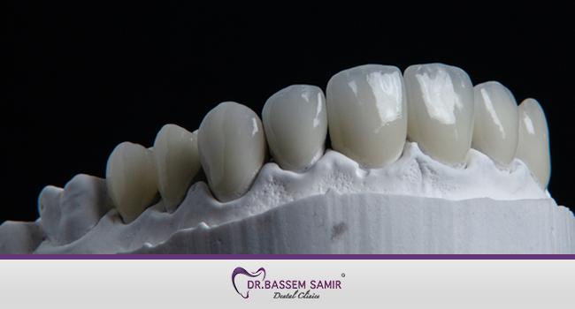 عدسات الاسنان اللومينير للاسنان والفينير