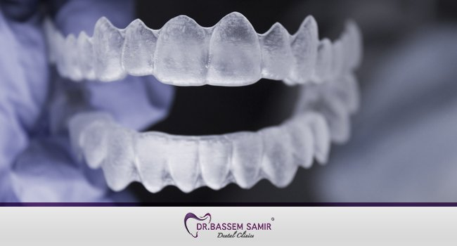 تقويم الاسنان الشفاف والمتحرك