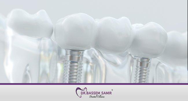 زراعة الاسنان بدون الم