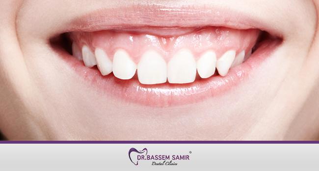 علاج الابتسامة اللثوية بالليزر او التقويم