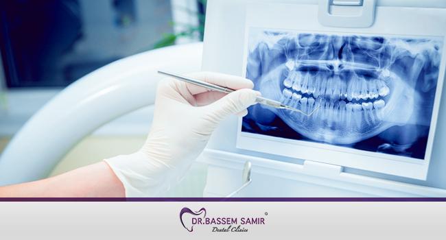 مشاكل الاسنان و علاجها بالتكنولوجيا الحديثة