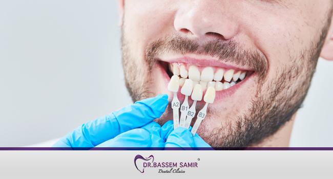 طريقة تجميل الاسنان بدون تقويم بالقشور الخزفية