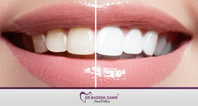 افضل طرق تبييض الاسنان دكتور باسم سمير