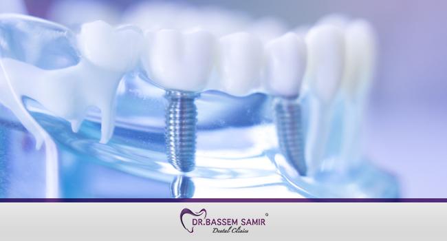 زراعة الاسنان في مصر
