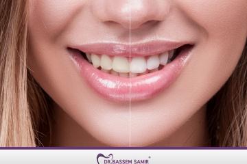 تبييض  وتنظيف الآسنان