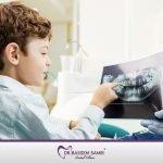 علاج الاسنان للاطفال